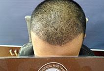 Chăm Sóc Sau khi cấy tóc chữa hói chữ M