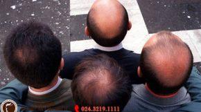 cấy tóc tự thân trị rụng tóc hói đầu triệt để