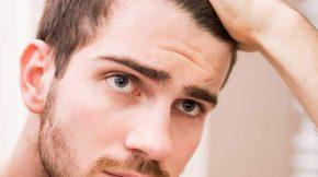 rụng tóc là vấn đề nan giải