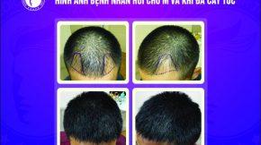 cấy tóc tự thân có bị rụng lại không