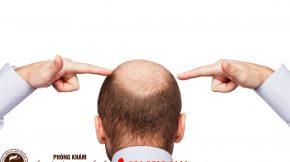 rụng tóc do thay đổi nội tiết tố hay androgenetic