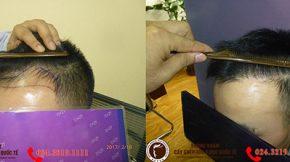 cấy tóc tự thân điều trị rụng tóc