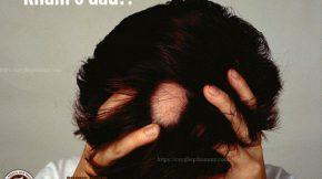 rụng tóc từng mảng khám ở đâu
