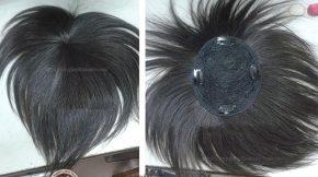 tóc giả che hói