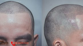 xăm chân tóc cho người hói đầu là gì