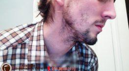 Tại sao râu mọc không đều? Râu mọc không đều có khiến bạn luộm thuộm