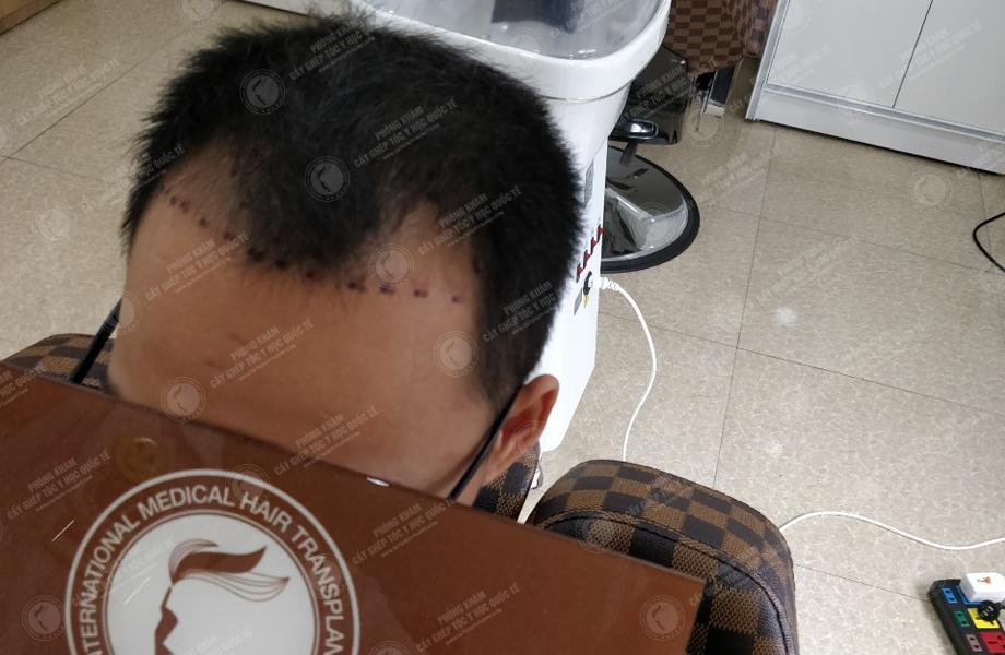 Trịnh Tiến Toàn - Cấy tóc tự thân 4