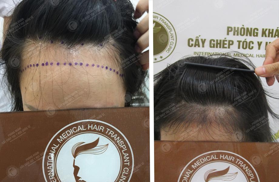 Mai Thị Ngọc Lan - Cấy tóc tự thân 1