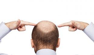 """Bệnh hói đầu – Mẹo giải quyết nỗi """"ám ảnh"""" không của riêng ai"""