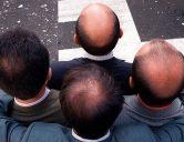 Hói đầu di truyền hoàn toàn có thể chữa trị nếu bạn biết những điều này