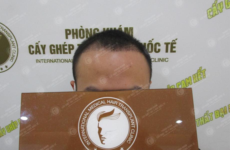 Hoàng Thanh Tùng - Cấy tóc đường chữ M 8