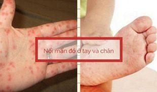 Dấu hiệu nổi mẩn đỏ ở lòng bàn tay và chân là bệnh gì?