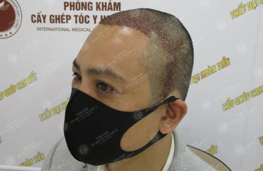 Phạm Hồng Quyết - Cấy tóc trên sẹo 8