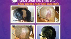 cách xóa và làm mờ sẹo trên da đầu