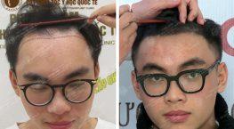 Gammer Trần Quang Hiệp ProE review sau 6 tháng cấy tóc