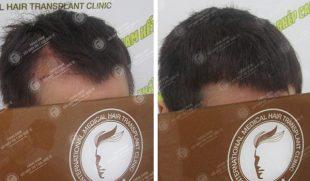 Ở tuổi 25, tôi đã đi tìm nguyên nhân rụng tóc và cách điều trị như thế nào?