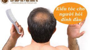 Kiểu tóc cho người hói đỉnh đầu