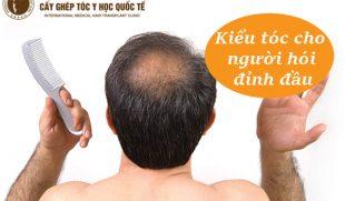 7 kiểu tóc cho người hói đỉnh đầu nam che đi khuyết điểm hiệu quả