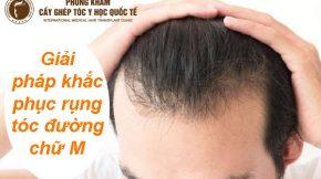 rụng tóc đường chữ m