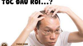 nguyên nhân tóc không mọc