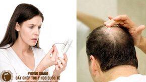 cách chữa trị tóc hói