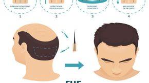 cấy tóc tự thân fue