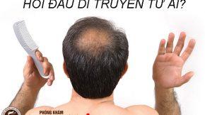 Hói đầu di truyền từ ai