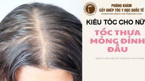 kiểu tóc cho nữ bị hói đỉnh đầu