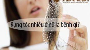 rụng tóc nhiều ở nữ là bệnh gì
