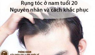 Nguyên nhân rụng tóc ở nam tuổi 20 và cách khắc phục