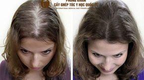 cách trị hói đầu ở phụ nữ