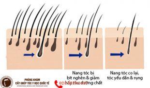 Cảnh báo: Mất nang tóc là mất dần khả năng mọc lại tóc