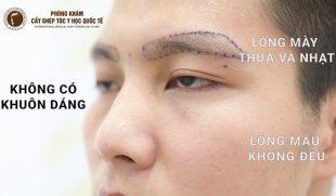 Nguyên nhân và cách chữa rụng lông mày ở nam giới hiệu quả