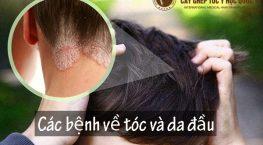 Điểm mặt các bệnh về tóc và da đầu thường gặp và cách xử lý