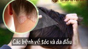 các bệnh về tóc và da đầu