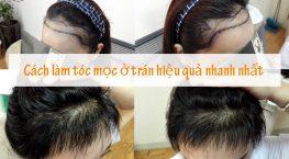 Cách làm tóc mọc ở trán hiệu quả nhanh chóng lâu bền