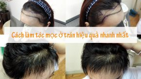 cách làm tóc mọc ở trán
