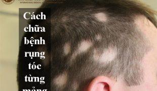 Bỏ túi cách chữa bệnh rụng tóc từng mảng hiệu quả nhất