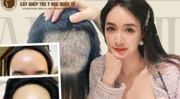 Trán cao muốn mọc tóc phải làm sao? Giải pháp tối ưu cho những người trán cao